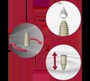peek orthopedic implants